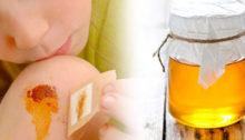 Soigner une plaie avec du miel